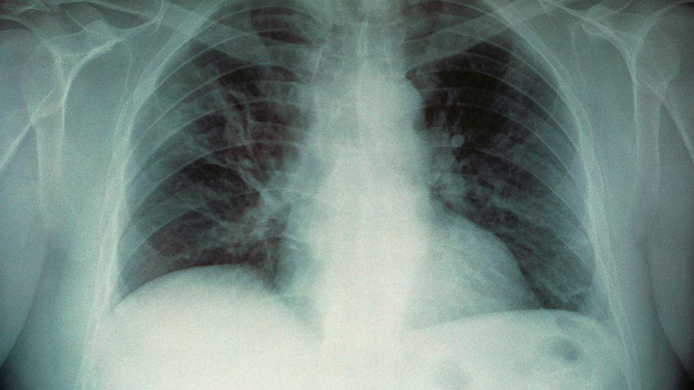 Legionella já vitimou 10 pessoas em Nova Iorque